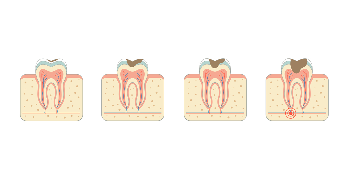 dca-blog_article-21_myths-and-facts-about-cavities_1200x630